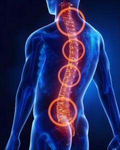Die vier kritischen Bereiche der Wirbelsäule: Oben die Halswirbel. Fehlstellungen belasten das Rückenmark und damit die Leitfähigkeit der Nerven. Einengungen im Hals-/Brustwirbelsäulenbereich können Taubheitsgefühle aber auch Atembeschwerden und Herzrhythmusstörungen auslösen. Die beiden unteren Bereiche der Wirbelsäule sind vor allem bei sitzenden Berufen stark belastet. Foto: Fotolia