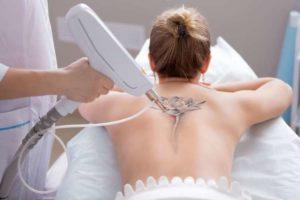 Um eine Tätowierung zu entfernen sind meist mehrere Laserbehandlungen notwendig.