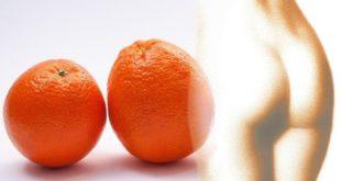 Unter Cellulite leiden viele Menschen, hauptsächlich Frauen.
