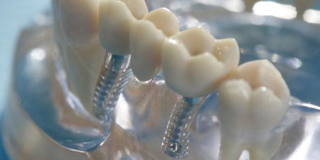 """Zahnimplantate bieten gegenüber einem """"normalem"""" Zahnersatz deutliche Vorteile."""
